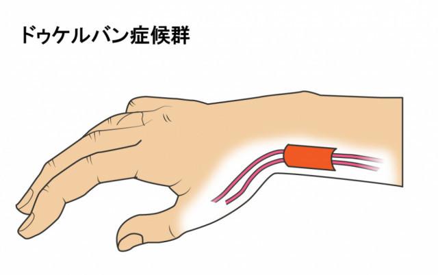 腱鞘炎のイラスト